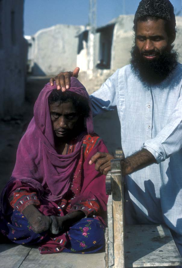 """The poor woman leprosy patient in Gwadar with Doctor Mehdi"""""""